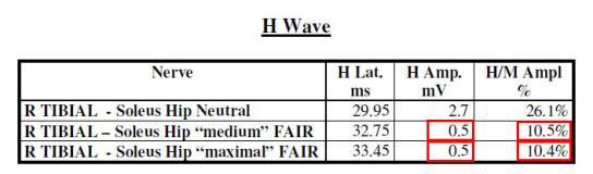 H Wave Results from Provocative EMG